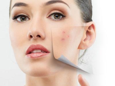 Adult Acne Treatment & Management