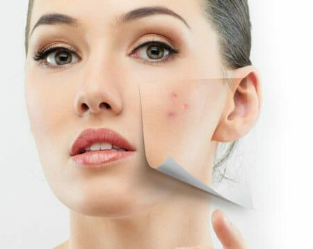 Acne, Rosacea, Eczema, Psoriasis – what you need to know